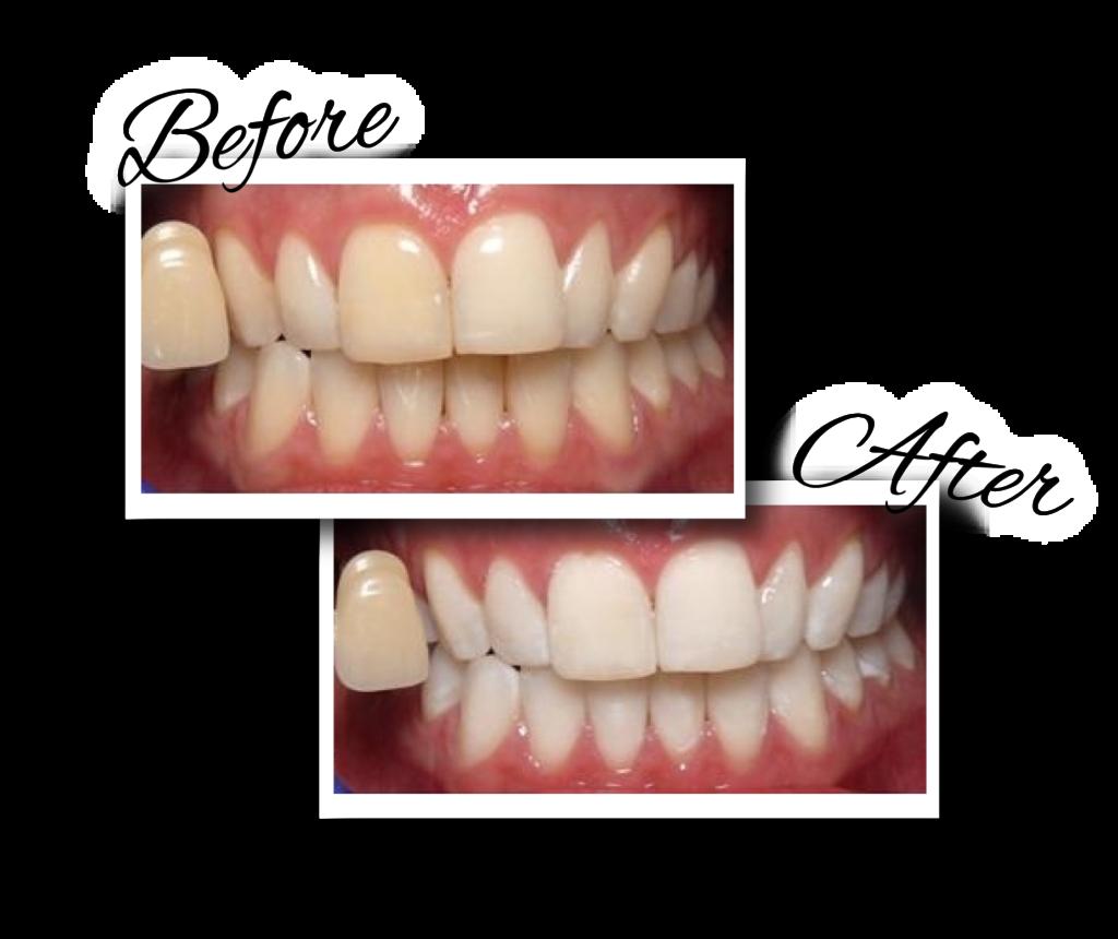 歯のビフォーアフター